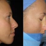 Ксения Собчак сделала пластическую операцию носа