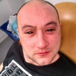 Человеку имплантировали ночное зрение