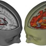 Сканирование мозга впервые показало как воздействует на сознание ЛСД