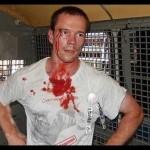 Как убивают известного российского правозащитника Дадина в колонии