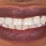 Британские ученые нашли способ лечить зубы без пломб