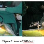 Китайский робот-хирург сделал операцию на позвоночнике