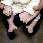 В Китае мальчик у которого 31 палец уже прожил 3 месяца