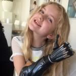 Британия первой в мире проводит клинические испытания кибер-протезов