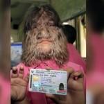 Самая волосатая девушка в мире с трудом, но вышла замуж (видео)