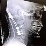 Американец пережил отделение черепа от позвоночника и идет на поправку