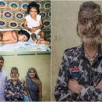 Индийский оборотень: лицо 13-летнего мальчика покрыто волосами
