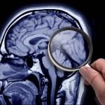 Врачи опробовали на 25-летнем пациенте новую методику перезагрузки мозга