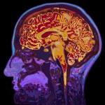 Неврологи рассекретили, почему мозг человека большой