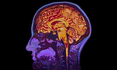 rp_brainimplant.jpg
