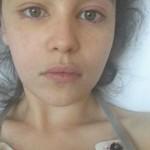 Эмилия Кларк впервые показала фото после операций на мозге
